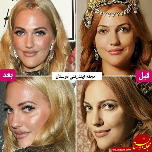 www.dustaan.com عمل های زیبایی بازیگر خرم سلطان صدای مردم ترکیه را درآورد +عکس