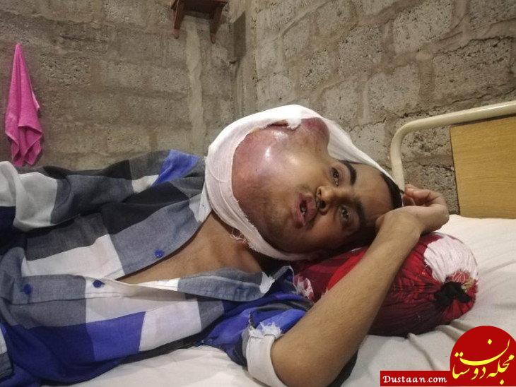 www.dustaan.com عاقبت وحشتناک مراجعه به دندانپزشک غیرحرفه ای! +عکس