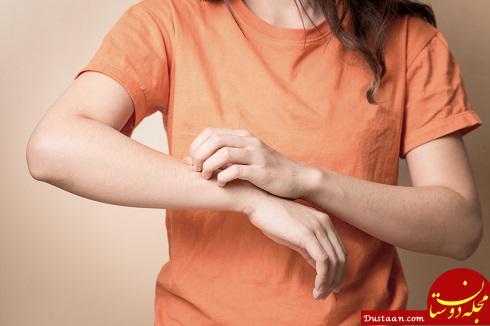 www.dustaan.com دلایل خارش پوست چیست و نشان دهنده چه بیماری هایی است؟