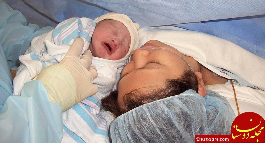 www.dustaan.com کاهش درد سزارین با استفاده از پمپ درد / بهترین مسکن برای درد سزارین