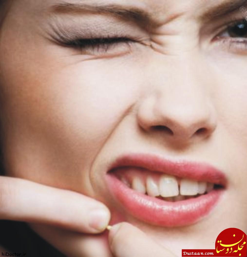 www.dustaan.com جلوگیری از جوش صورت در تابستان با روش های خانگی