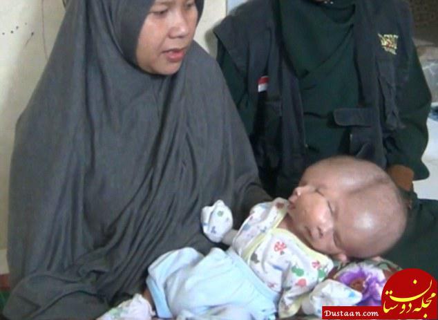 www.dustaan.com تولد نوزادی با دو مغز پزشکان را شگفت زده کرد! +تصاویر