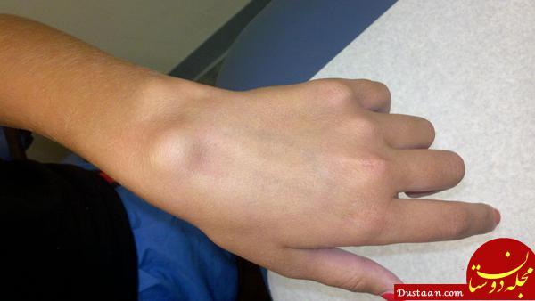 پف کردن انگشتان دست نشانه چه بیماری هایی است؟