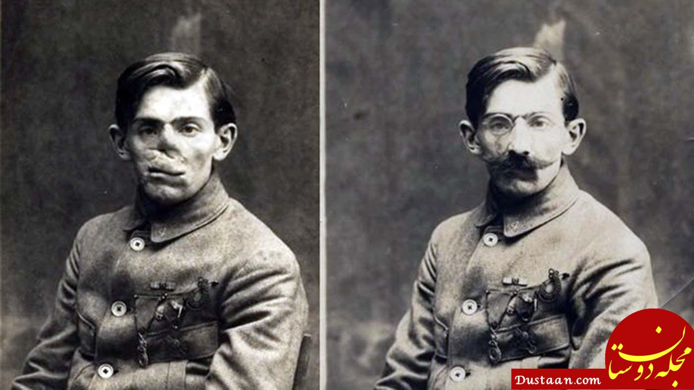 www.dustaan.com عکس های دیدنی از بازسازی چهره مجروحان جنگ جهانی !