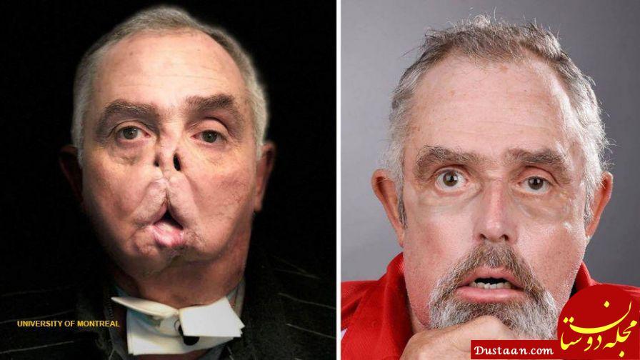 www.dustaan.com پیوند کامل صورت در 65 سالگی! +عکس