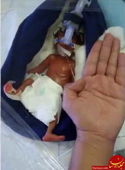 www.dustaan.com عکس های شگفت انگیز از نوزادی که در چهار ماهگی به دنیا آمد!