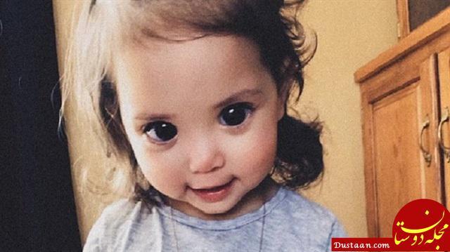 www.dustaan.com سندرمی عجیب که دختربچه را صاحب چشمانی فوق العاده زیبا کرد!