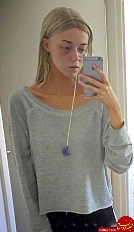 www.dustaan.com دختری که به خاطر ریزش مو 15 بار خودکشی کرد! +عکس