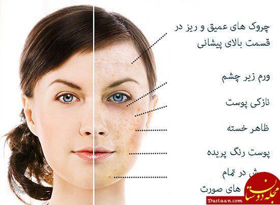 www.dustaan.com تاثیر کمبود پنج ماده غذایی بر چهره +عکس