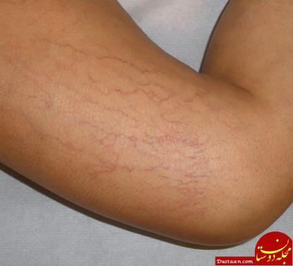 www.dustaan.com چگونه ترک های پوستی را از بین ببریم؟