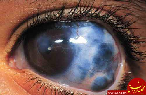 www.dustaan.com علائم و نشانه های ابتلا به آب سیاه چیست؟
