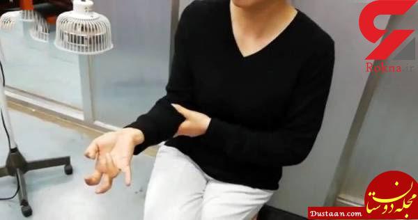 www.dustaan.com بازی با گوشی همراه، باعث فلج شدن دست این زن شد! +عکس