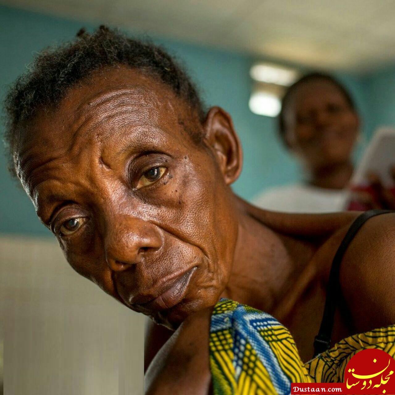 www.dustaan.com بیماری عجیب خوابیدن در کنگو! +عکس