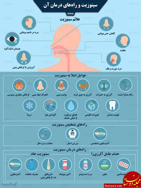 www.dustaan.com سینوزیت و راه های درمان آن در یک نگاه
