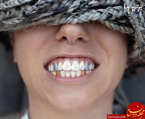 دندانهای رنگی؛ مد جدید این روزها! +عکس
