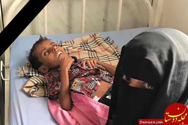 www.dustaan.com کودک 10 ساله؛ نخستین قربانی محاصره الحدیده یمن +عکس