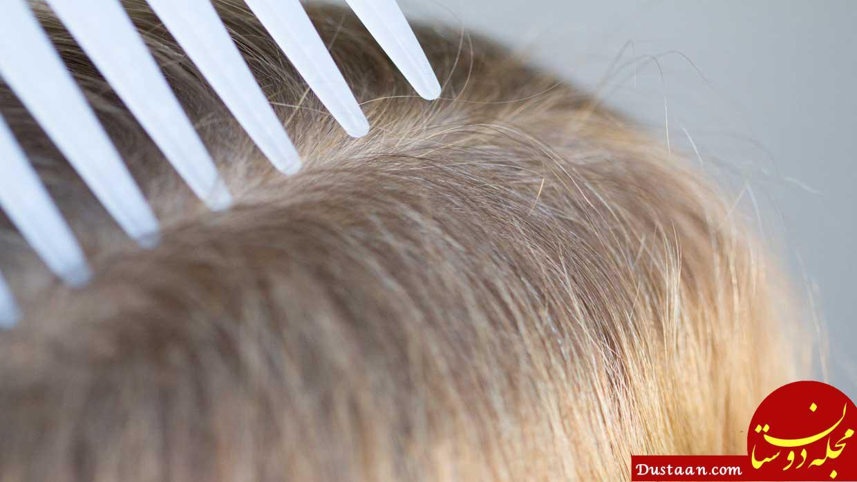 https://koorook.com/wp-content/uploads/2018/02/Kill-Head-Lice-Naturally-www.koorook.com-11.jpg