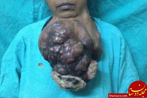 www.dustaan.com حذف تومور 5 کیلویی از چانه زن هندی +عکس