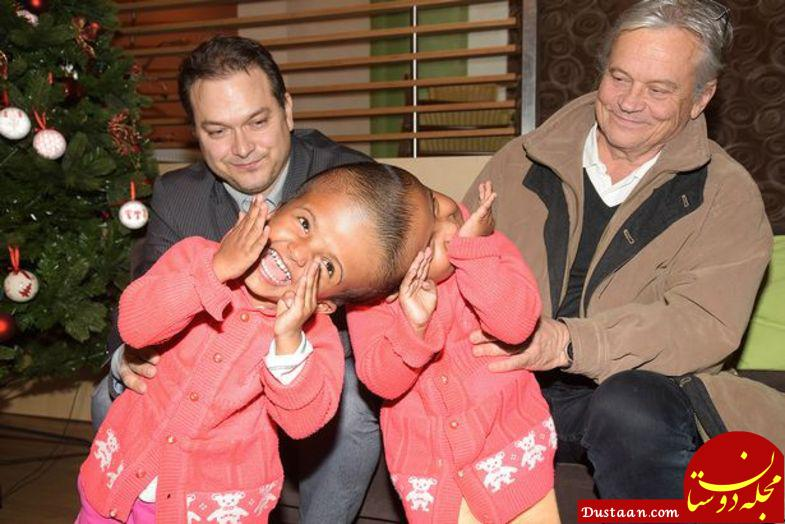 www.dustaan.com جراحی لاله و لادن بنگلادشی در مجارستان +عکس