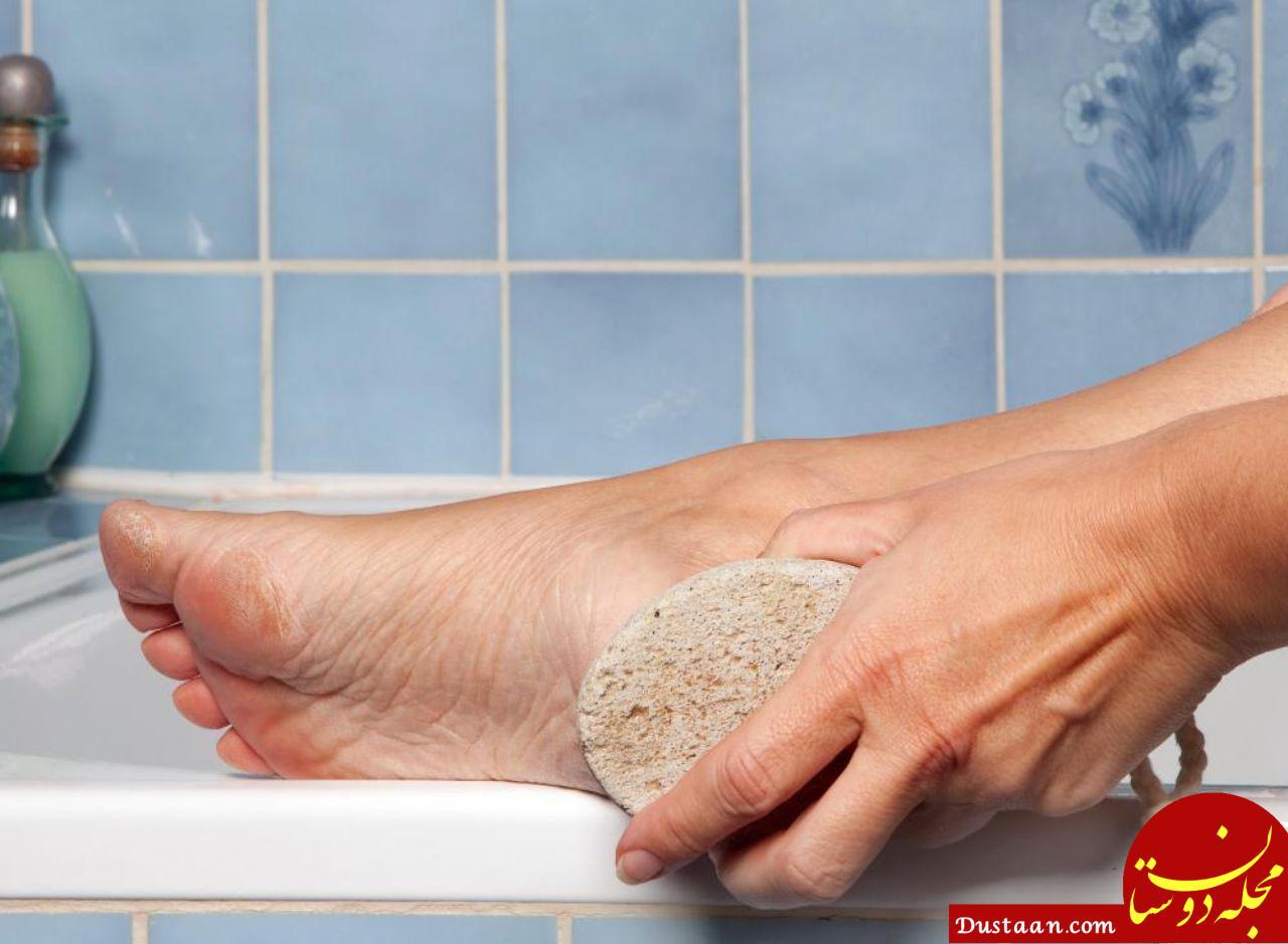 www.dustaan.com تاثیر سنگ پا کشیدن در از بین رفتن سردرد