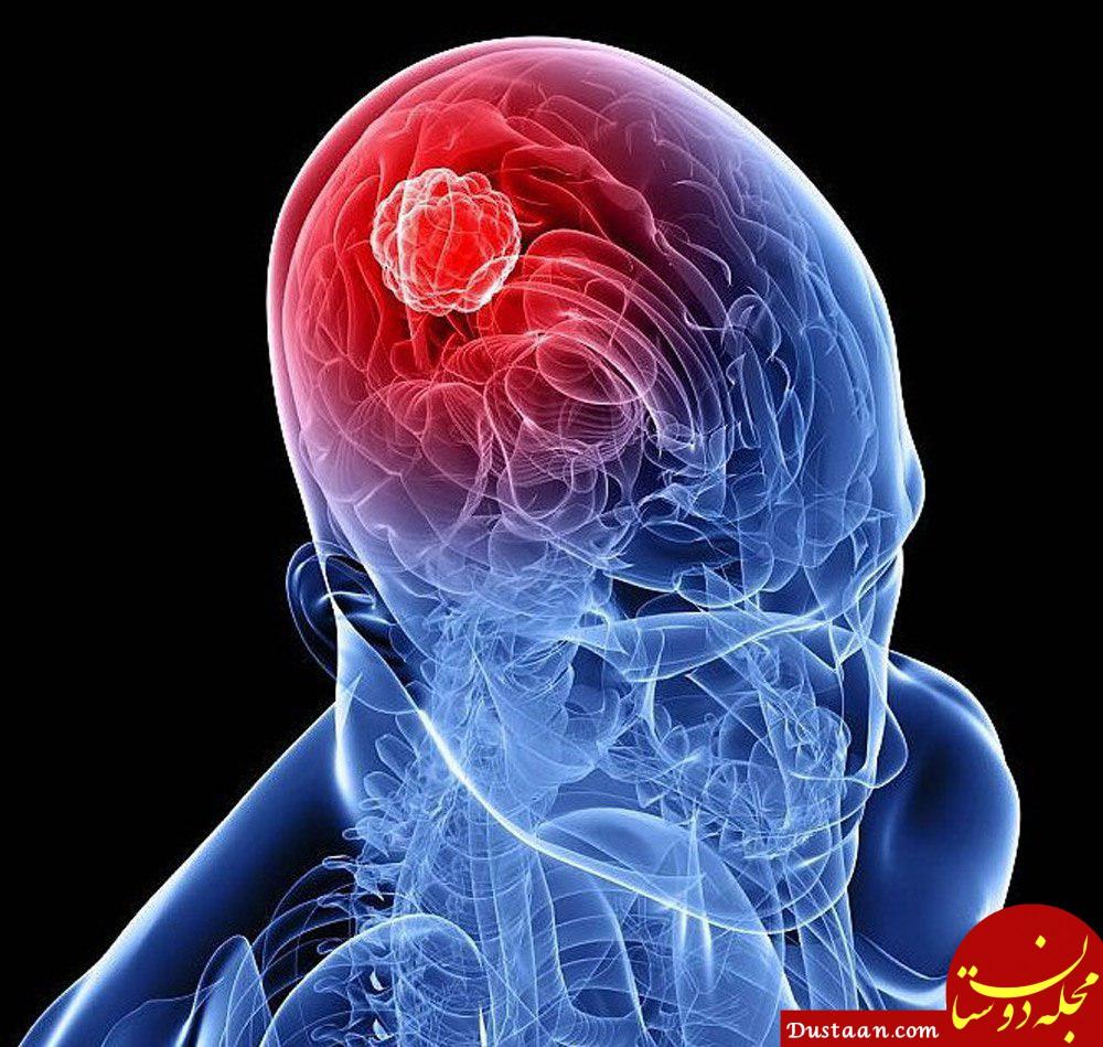 www.dustaan.com درمان تومور سر با کمک طب سنتی
