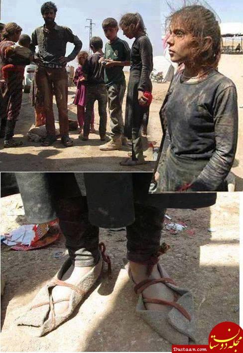 زندگی دردناک دختر 10 ساله ای که مورد تعرض داعش قرار گرفت +تصاویر
