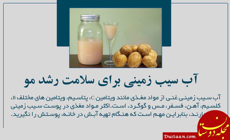 www.dustaan.com آب سیب زمینی برای سلامت رشد مو