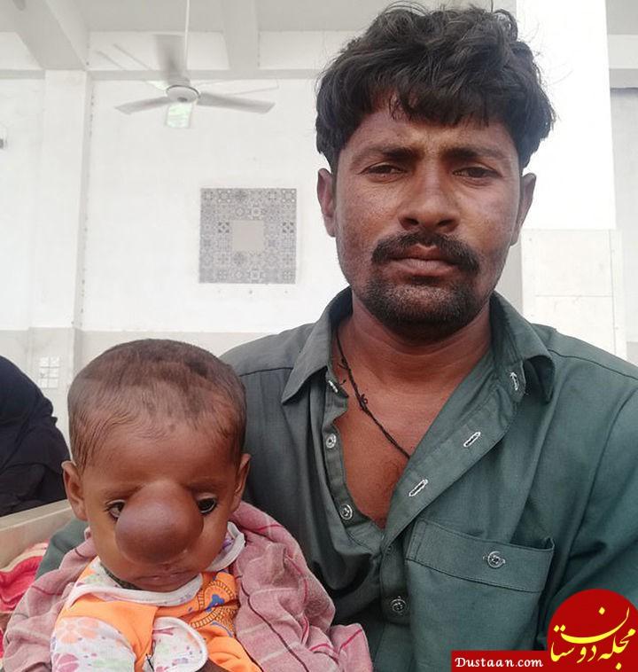 www.dustaan.com تولد کودکی عجیب الخلقه والدینش را شوکه کرد +عکس