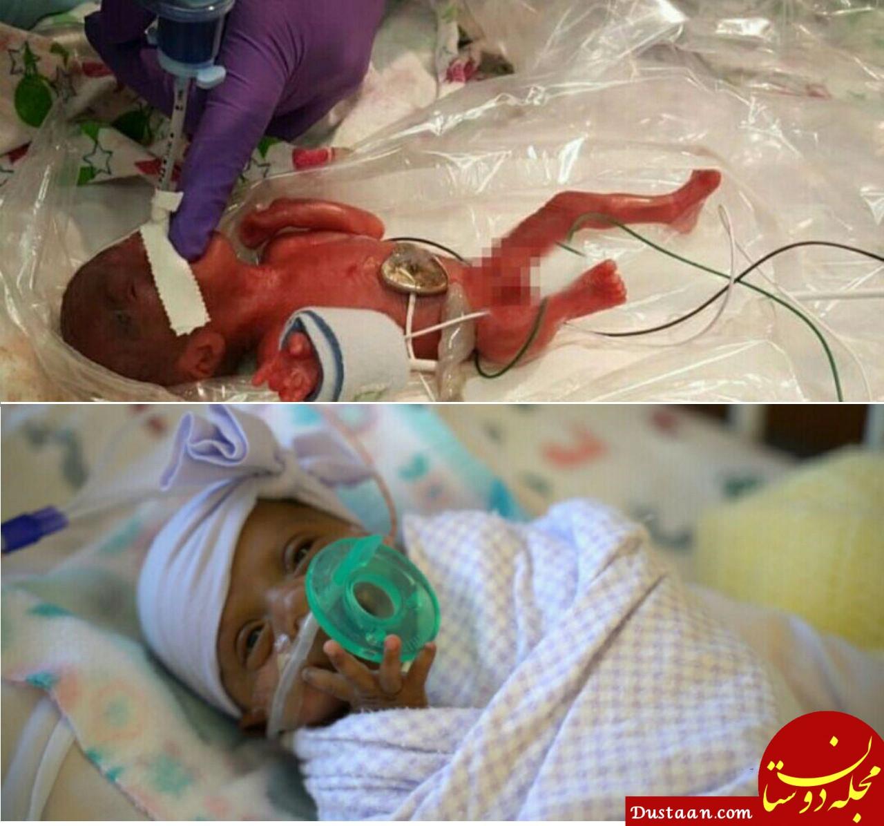 www.dustaan.com کوچک ترین نوزاد متولد شده جهان! +عکس
