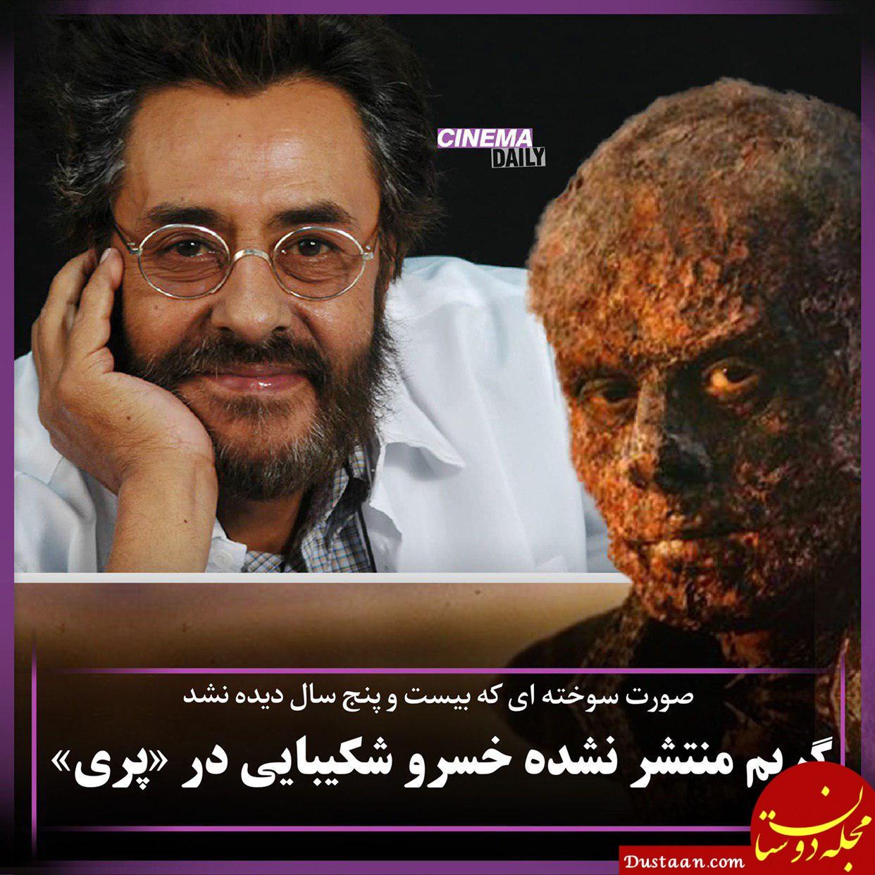 www.dustaan.com صورت سوخته خسرو شکیبایی که هیچگاه پخش نشد +عکس