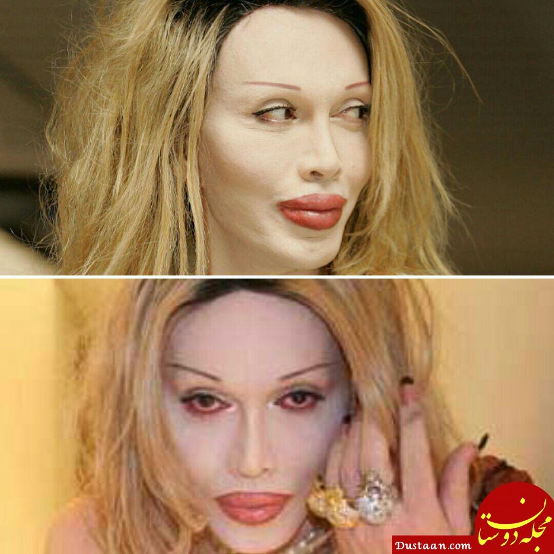 www.dustaan.com خواننده ای که پس از 200 عمل زیبایی جان سپرد! +عکس
