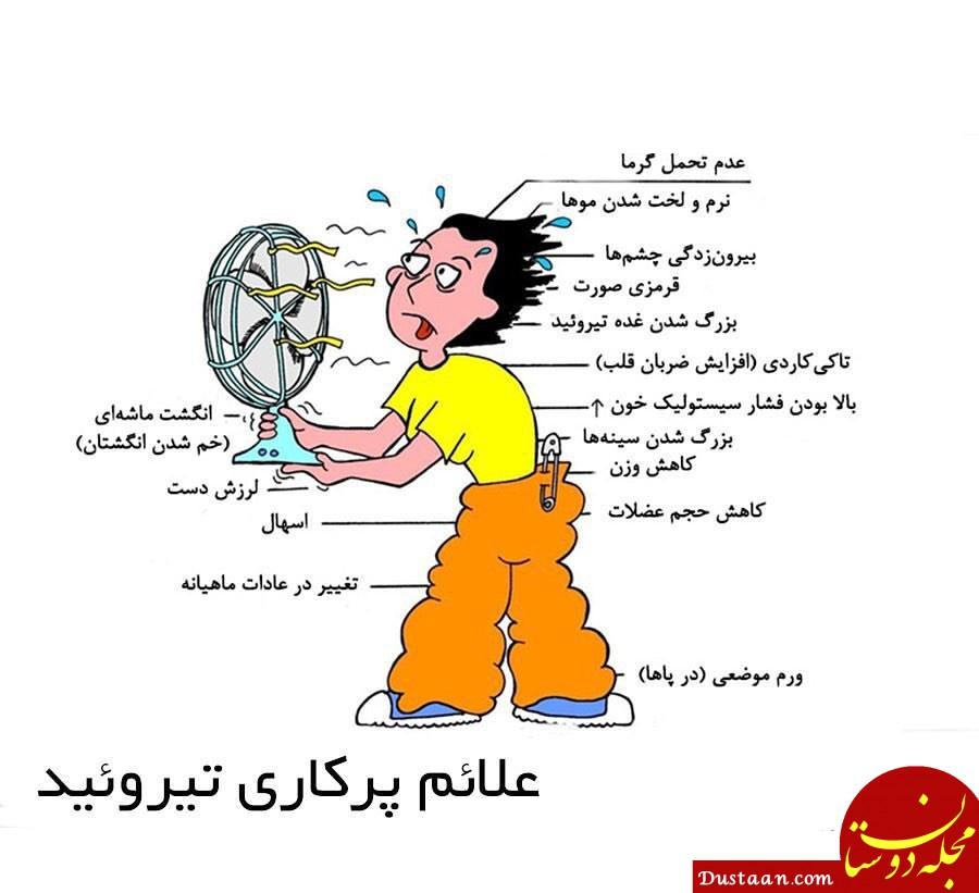 www.dustaan.com علائم پرکاری تیروئید چیست؟ + راه های درمان خانگی