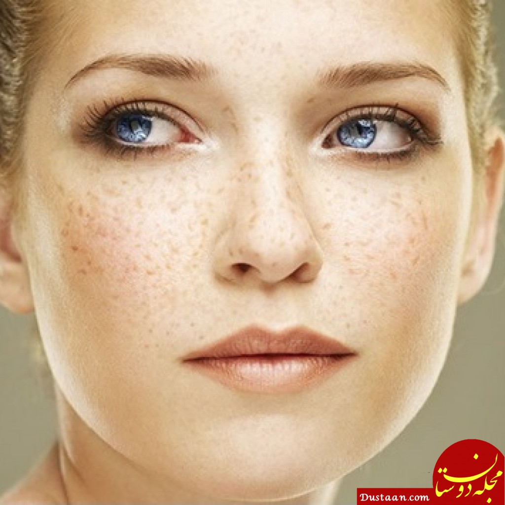 www.dustaan.com مجله اینترنتی فال روزانه حافظ 1563096670 - بهترین روش های خانگی برای درمان کک و مک
