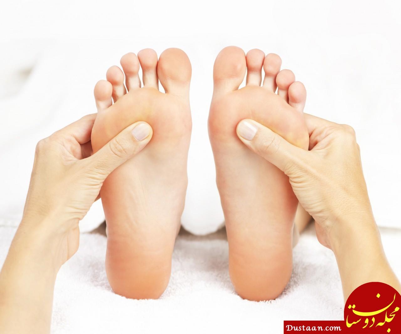 www.dustaan.com - زردی کف پا نشانه چه بیماری است؟