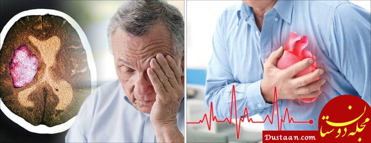www.dustaan.com همه چیز درباره علایم و نشانه های سکته قلبی و مغزی