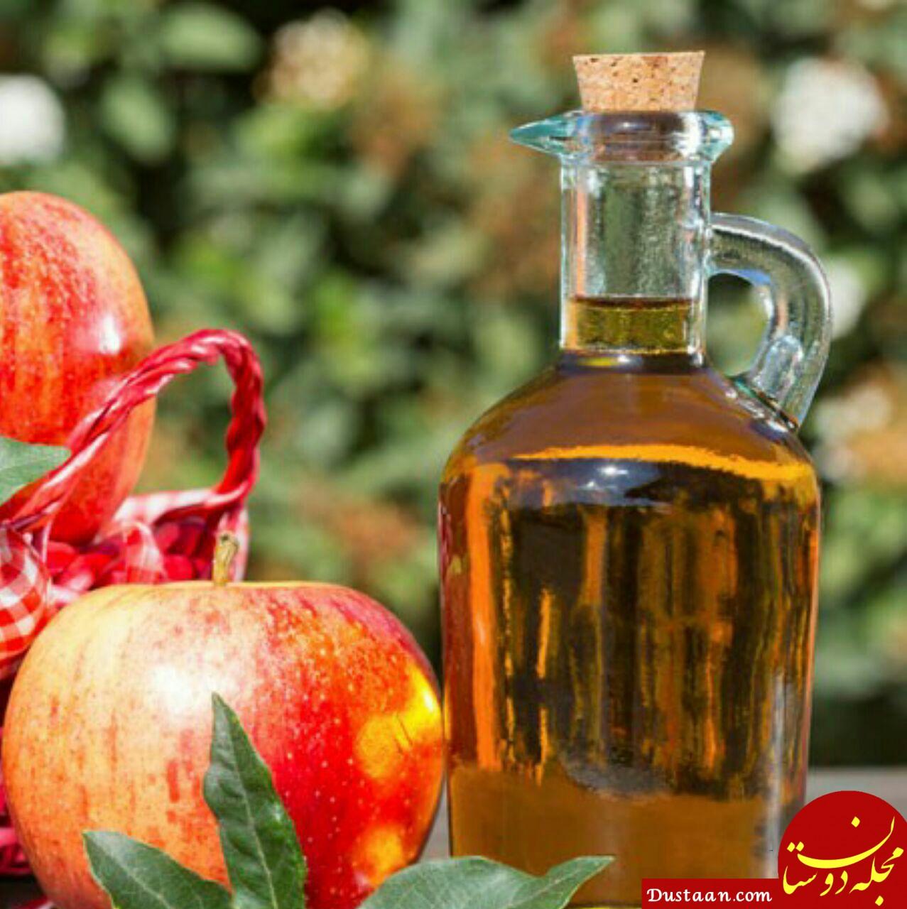 www.dustaan.com درمان عفونت قارچی زنان باسرکه سیب