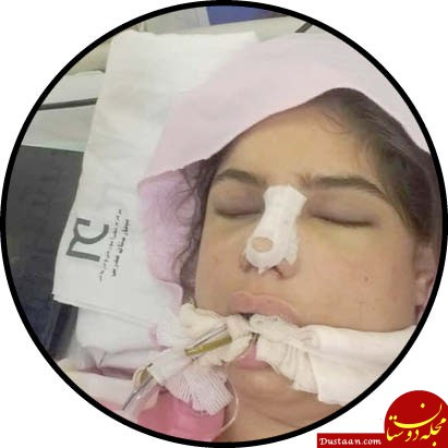 www.dustaan.com مرگ آرزوی دختر تهرانی در جراحی زیبایی +عکس