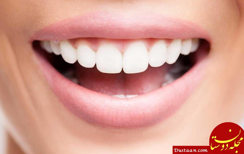 www.dustaan.com بهترین درمان خانگی بوی بد دهان