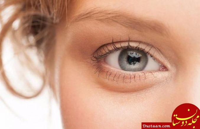 www.dustaan.com نسخه مفید درمان افتادگی چشم و پف زیر آن در طب سنتی
