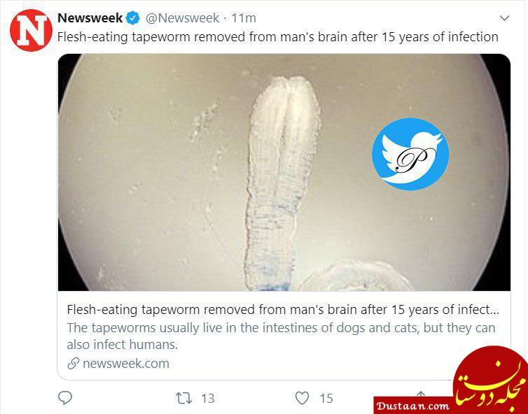 www.dustaan.com خارج کردن کرم 12 سانتی از مغز یک مرد! +عکس