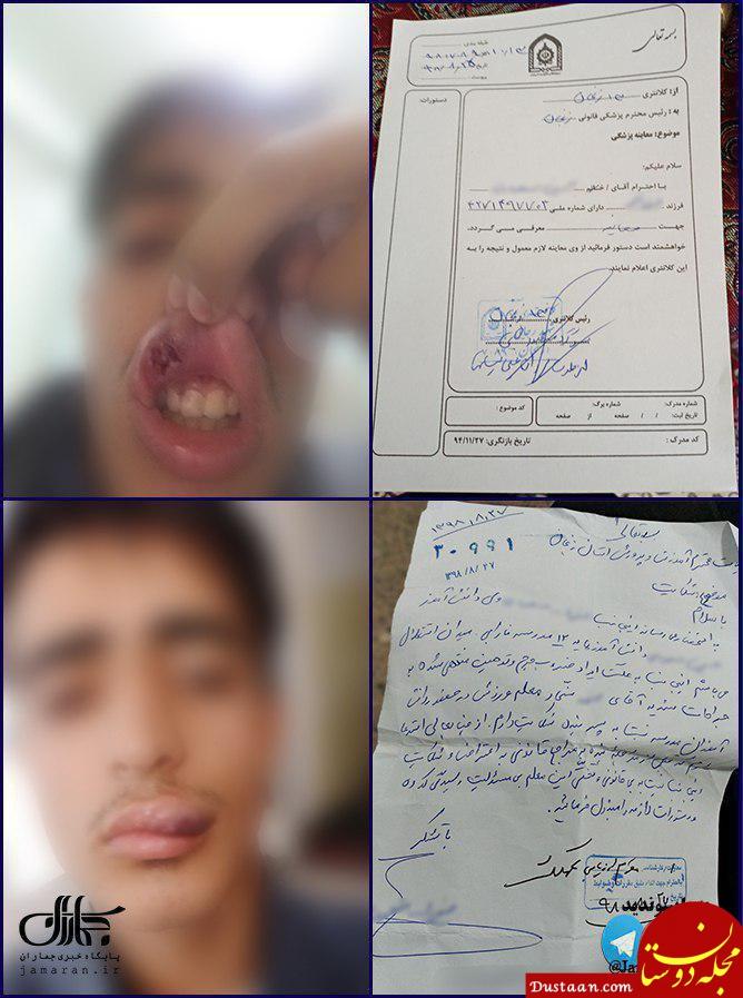 مجروح شدن دانش آموز زنجانی بر اثر ضرب و شتم معلم ورزش!