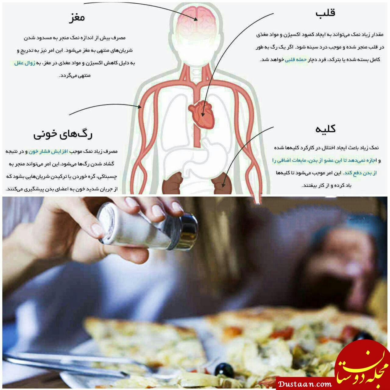 www.dustaan.com مصرف بیش از حد نمک با بدن انسان چه می کند؟!