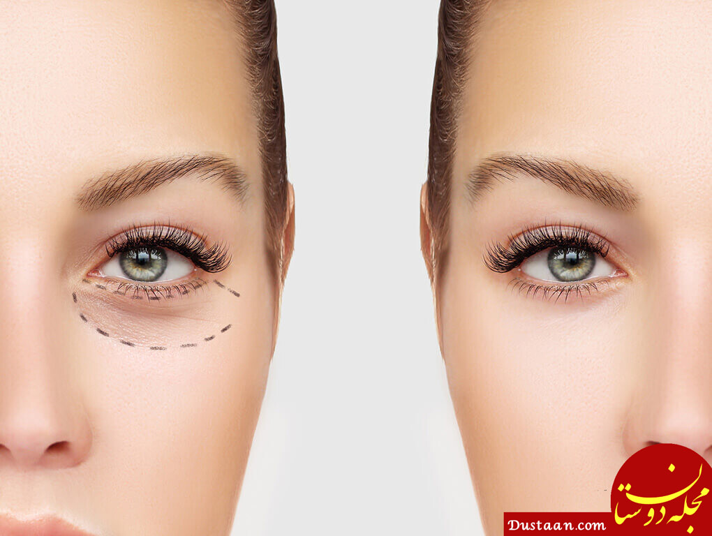 دلایل سیاهی دور چشم + روش های خانگی درمان تیرگی و کبودشدگی زیر چشم