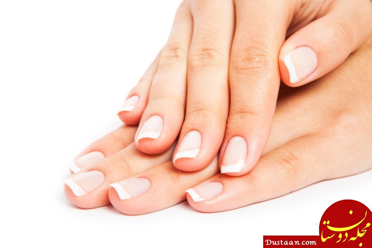 www.dustaan.com - علائم و نشانه های کم خونی + عوامل کمخونی و راههای درمان خانگی