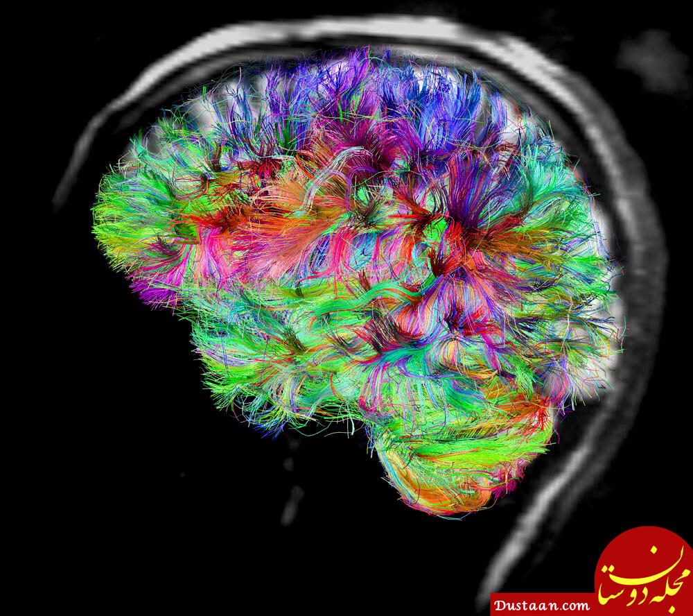 نورون های آینه ای در انسان