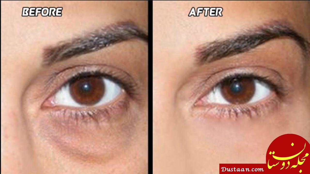 www.dustaan.com - دلایل سیاهی دور چشم+ روش های خانگی درمان تیرگی و كبودشدگی زیر چشم