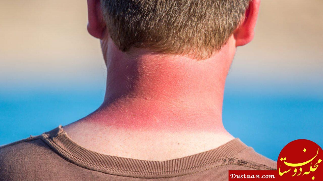 درمان آفتاب سوختگی با کمک طب سنتی