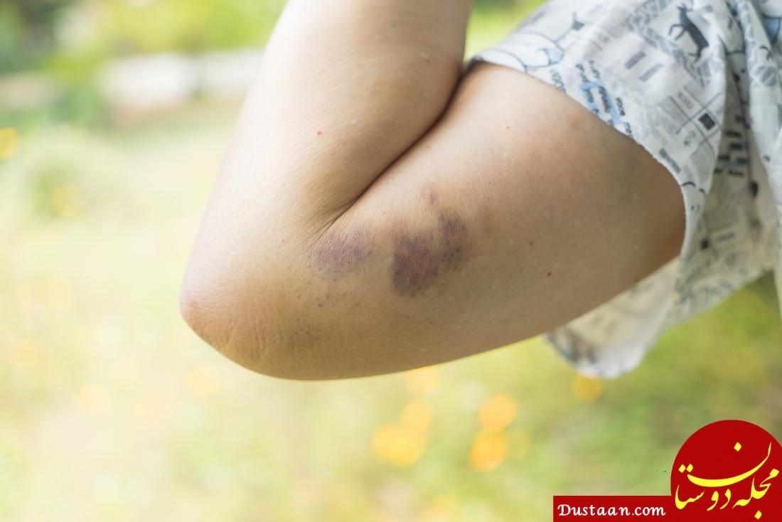 دلیل کبود شدن خود به خود پوست چیست؟