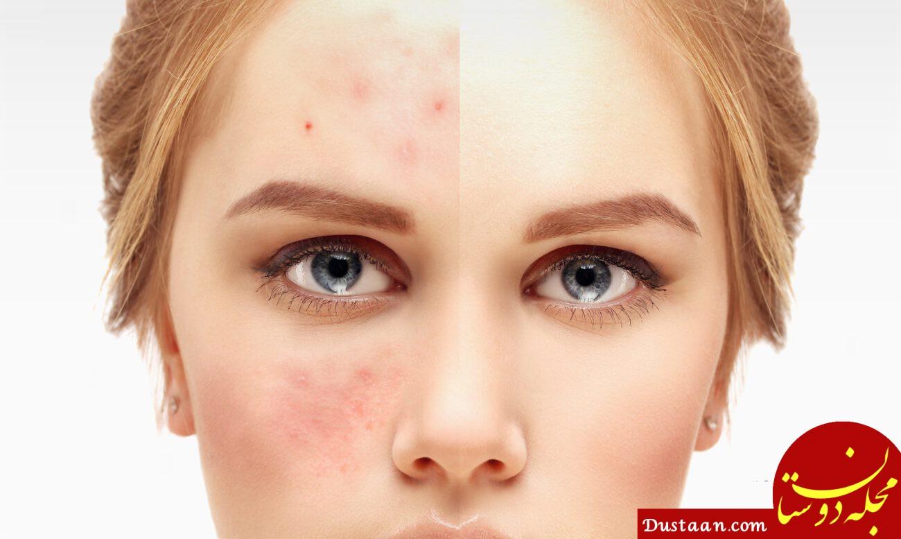 داشتن پوست شفاف با روش های خانگی موثر