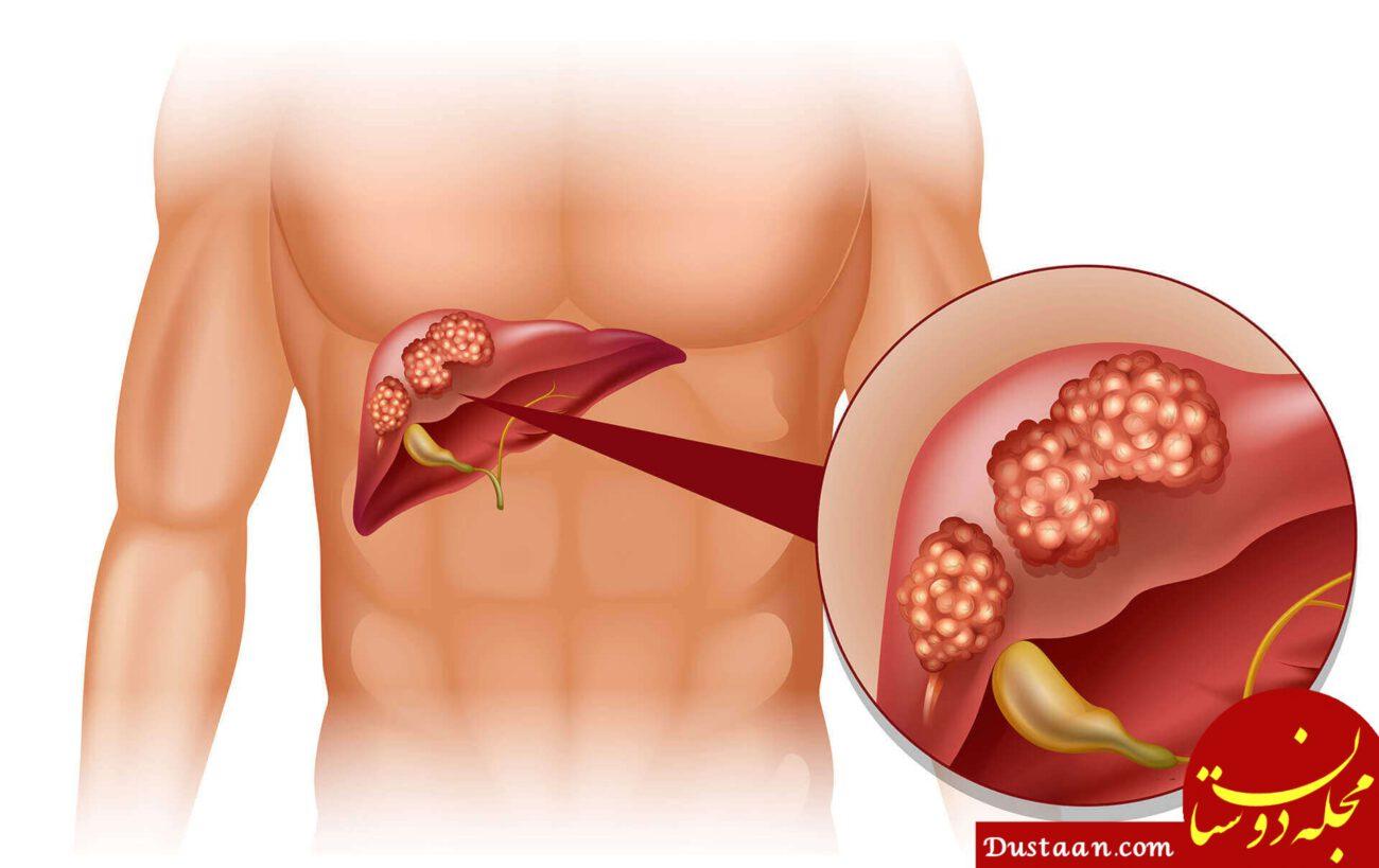سرطان کبد چیست؟ + نشانه ها و راههای پیشگیری
